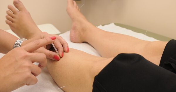 acupuncture treatment,