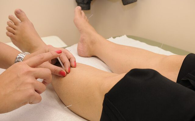 acupuncture treatment,